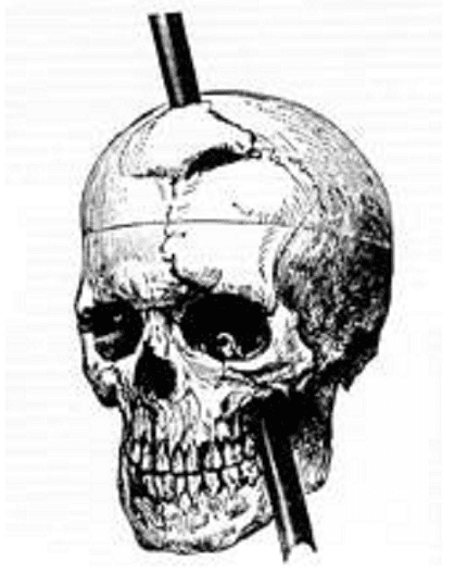 Illustration: skull diagram of Phineas P. Gage showing the path of the iron bar, 1868