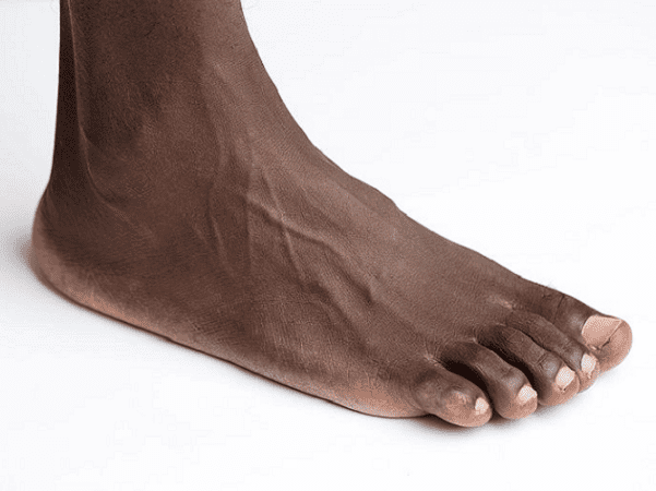 Photo: a human foot. Credit: Tomas Gunnarsson; Wikimedia Commons.